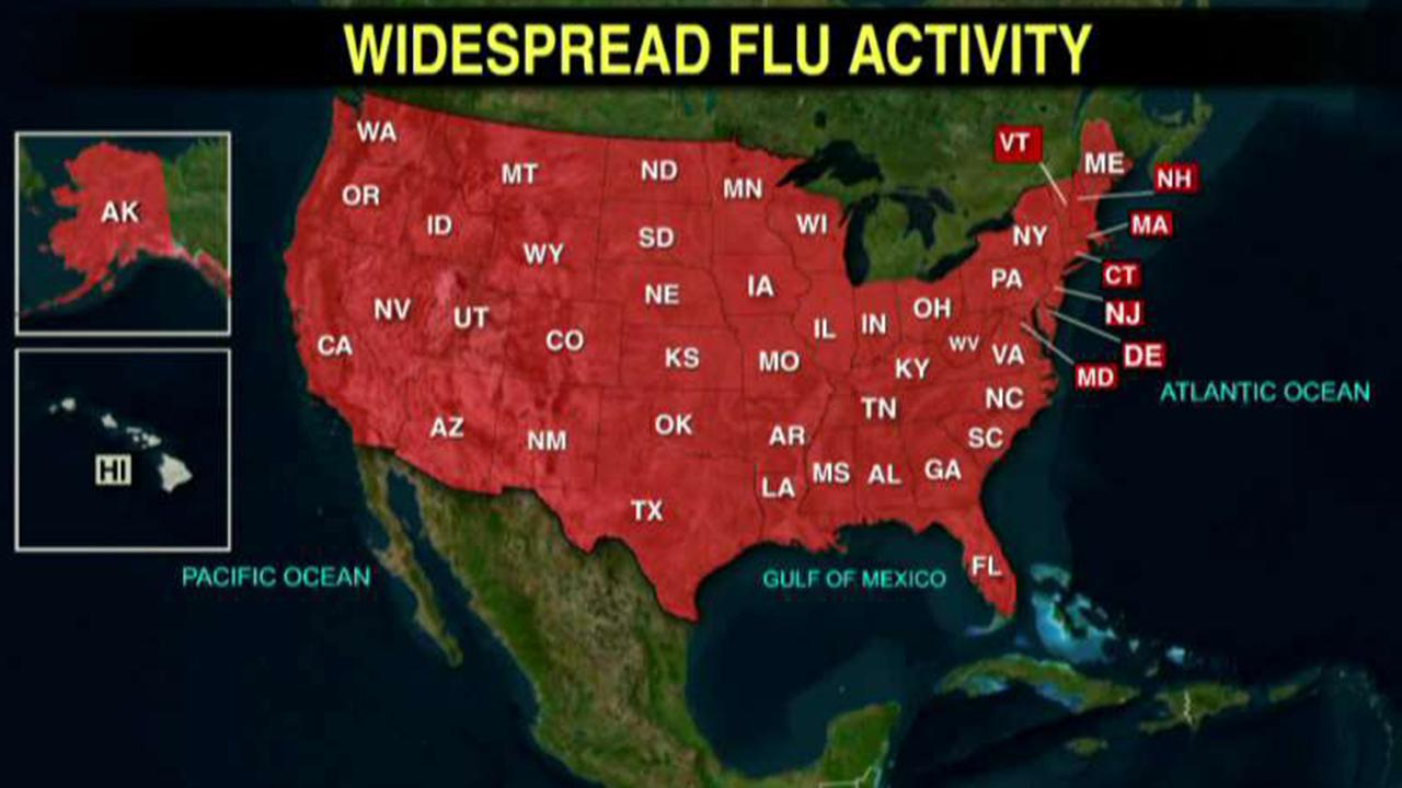 CDC: 49 states reporting widespread flu activity