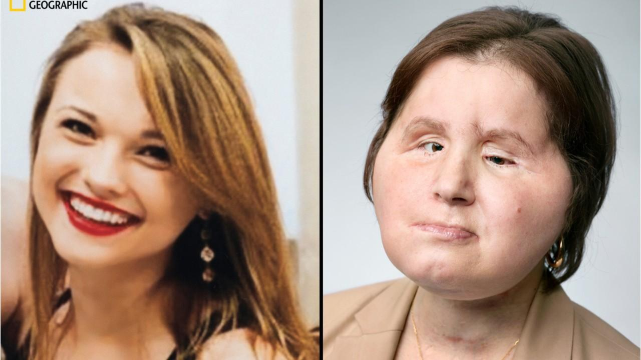 Girl receives 'face transplant' after suicide attempt