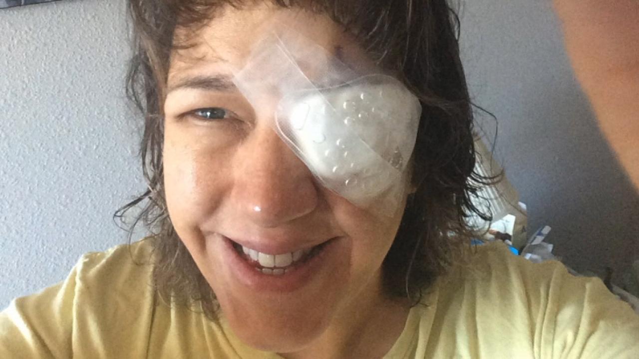 Colorado woman shares warning after parasite eats her cornea