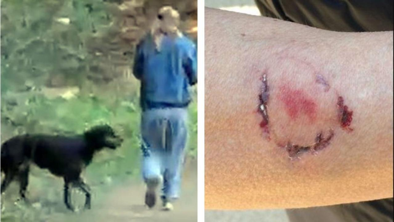 California woman arrested after biting jogger who pepper-sprayed her dog
