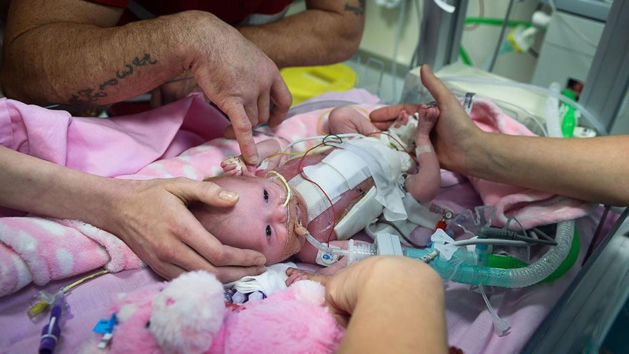 Westlake Legal Group 694940094001_6000078645001_6000078335001-vs Miracle of a UK baby who defied odds of survival with rare heart defect fox-news/health/medical-mysteries-marvels fox news fnc/health fnc eb51e0ad-03cf-56ea-b3d5-6aac0d920e9d article Alexandria Hein