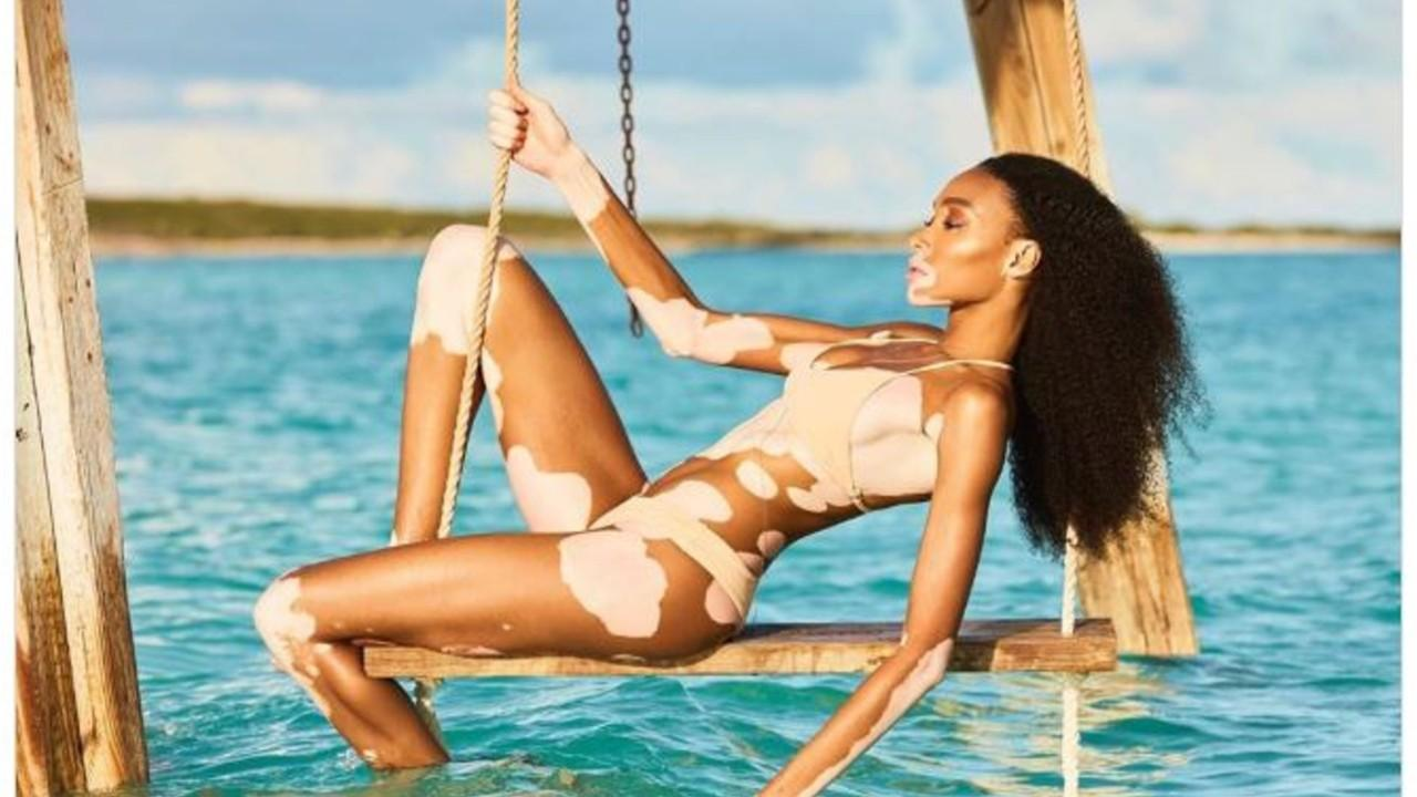 Winnie Harlow gushes over Sports Illustrated Swimsuit gig: 'We're redefining the swimsuit body'
