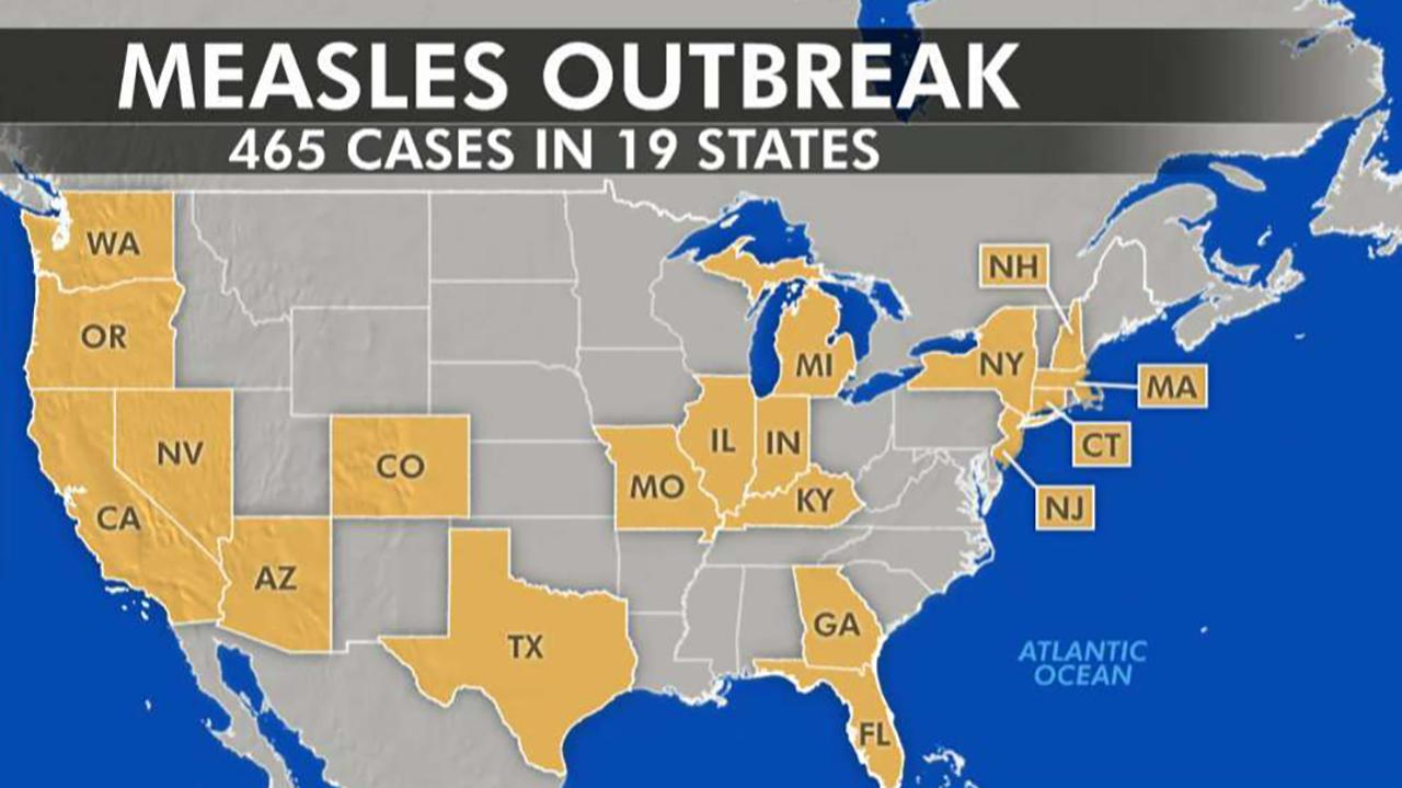 Medical experts blaming anti-vaxxers for nationwide measles outbreak
