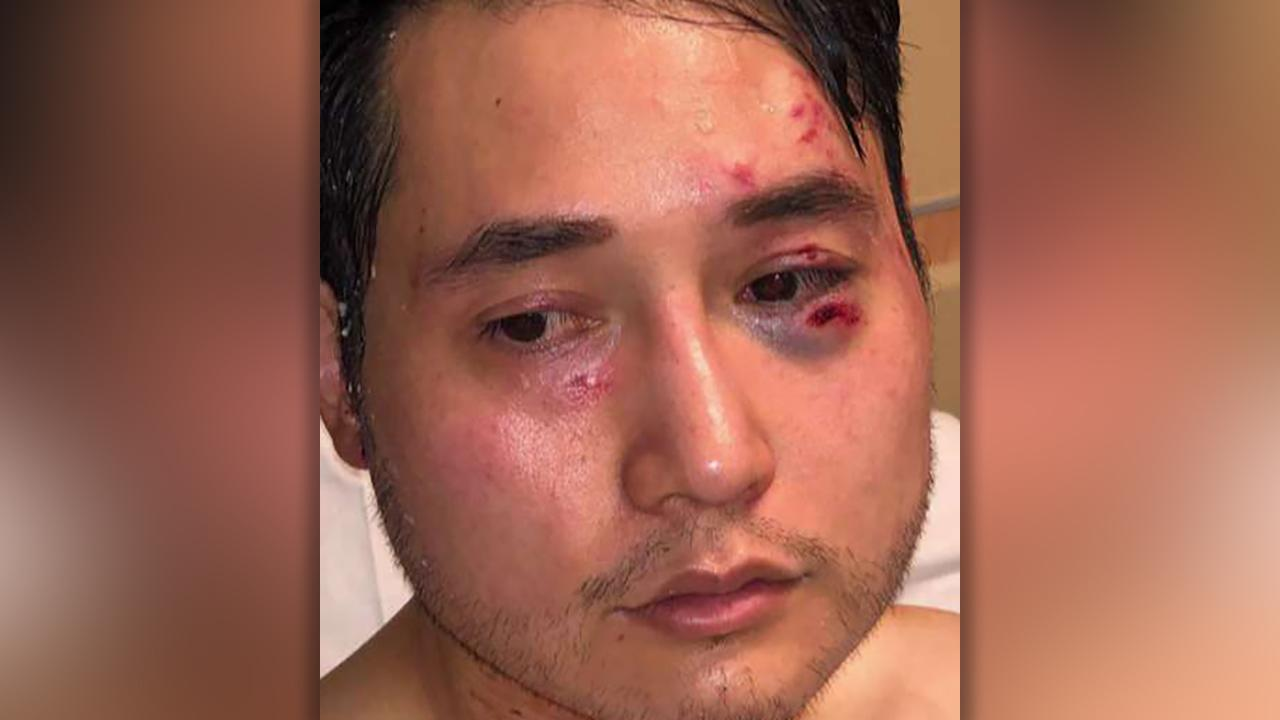 Antifa protesters attack conservative journalist sending him to the hospital
