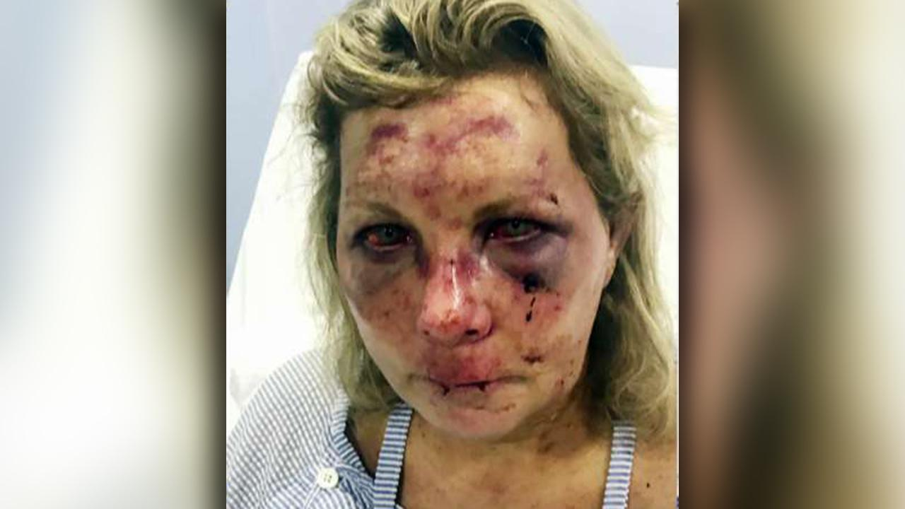 Woman says she was violently beaten while on vacation in Dominican Republic