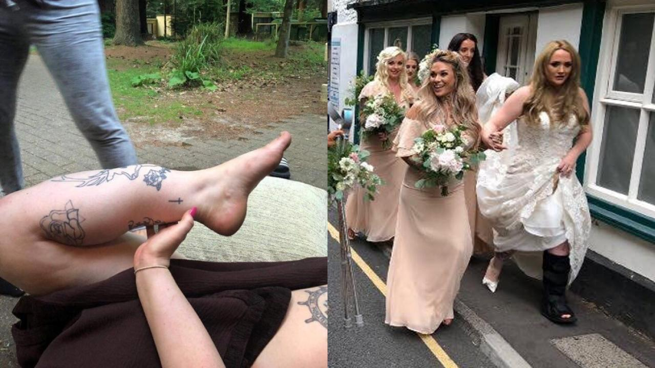 Bride nearly loses leg after freak bachelorette party accident