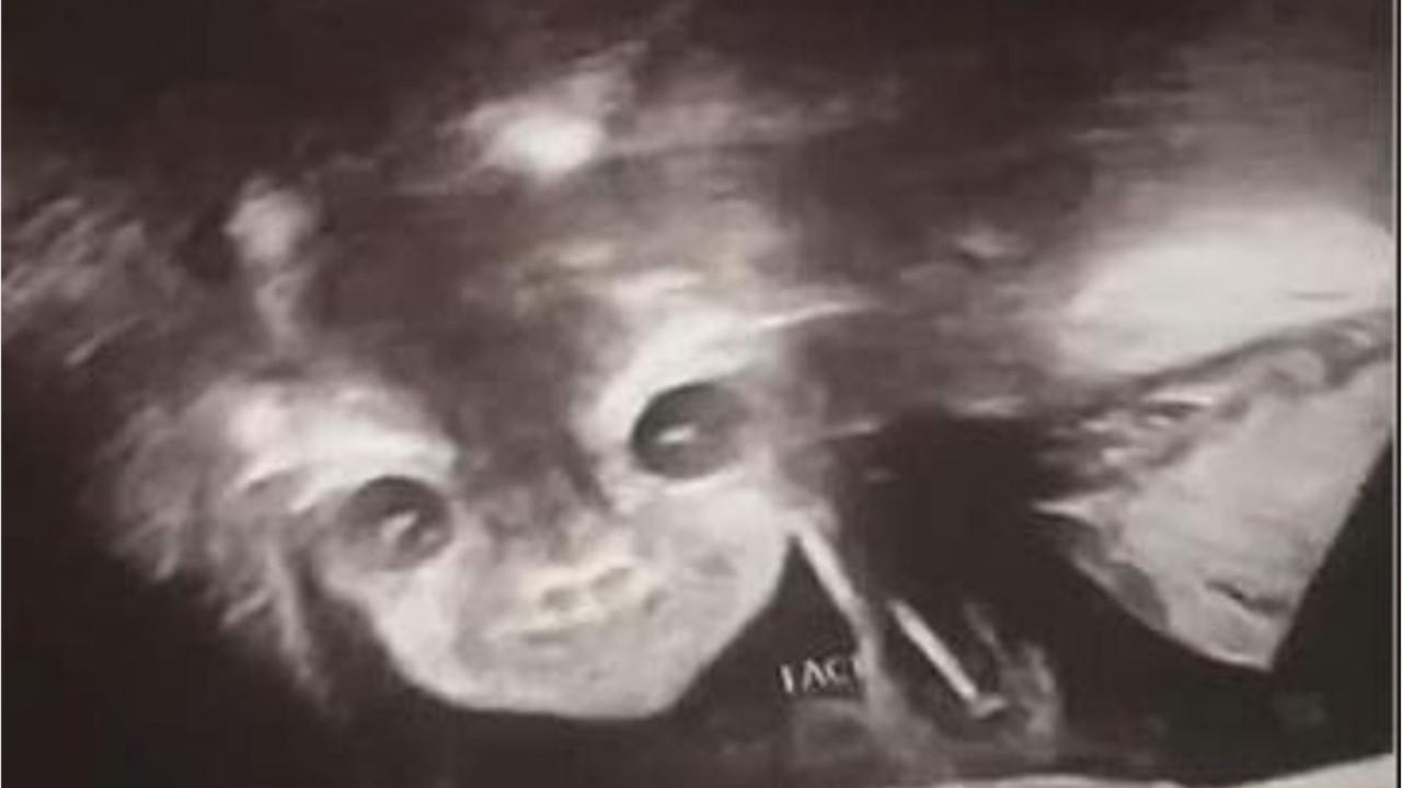 Ghastly image has mom thinking she's carrying a demon baby