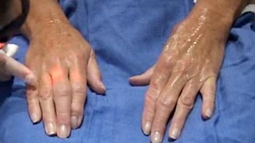 Hand Makeover