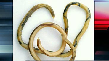 Roundworm Danger