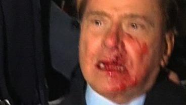 Italian PM Attacked